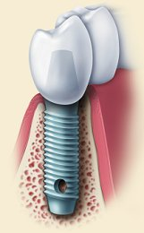 dental_implant_diagram2